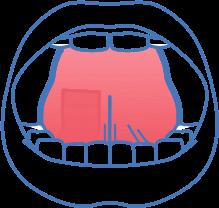 niacin-under-tongue