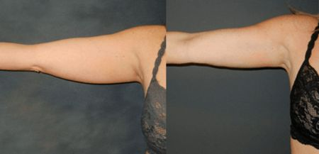 underarm-fat-removal