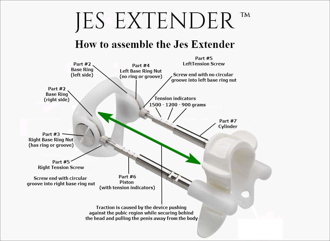 How-to-assemble-Jes-Extender