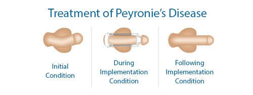 Peyronies-disease-treatment-using-male_edge