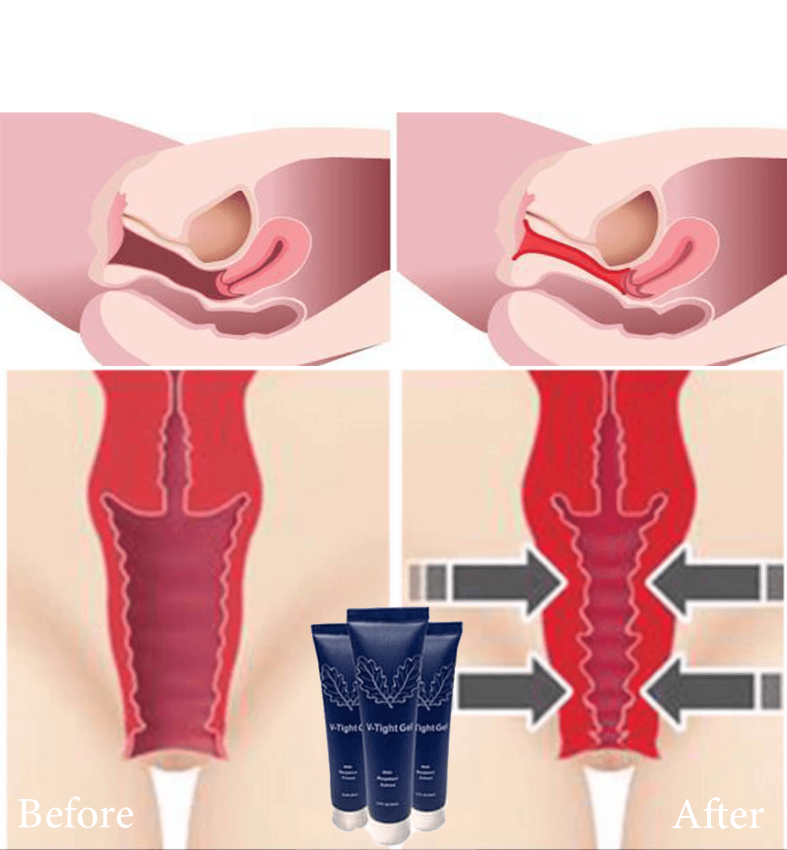 Vaginal Tightening Cream V-Tight Before and After