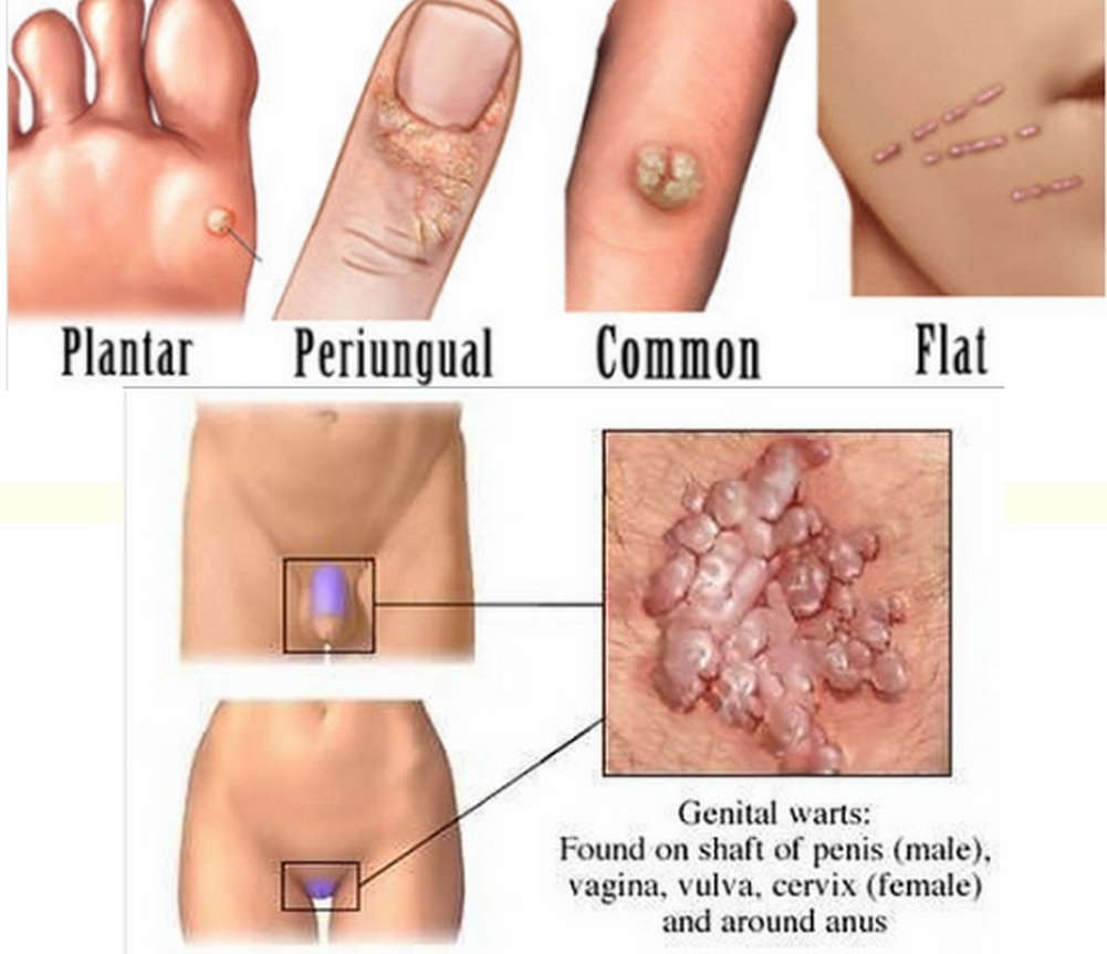common-area-of-warts-and-how-to-remove-with-wartrol