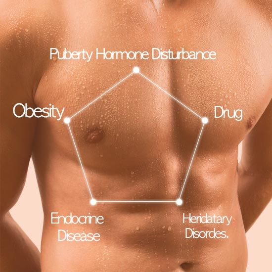 Gyno_Causes_Bodybuilding